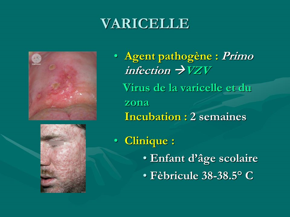 VARICELLE Agent pathogène : Primo infection VZV