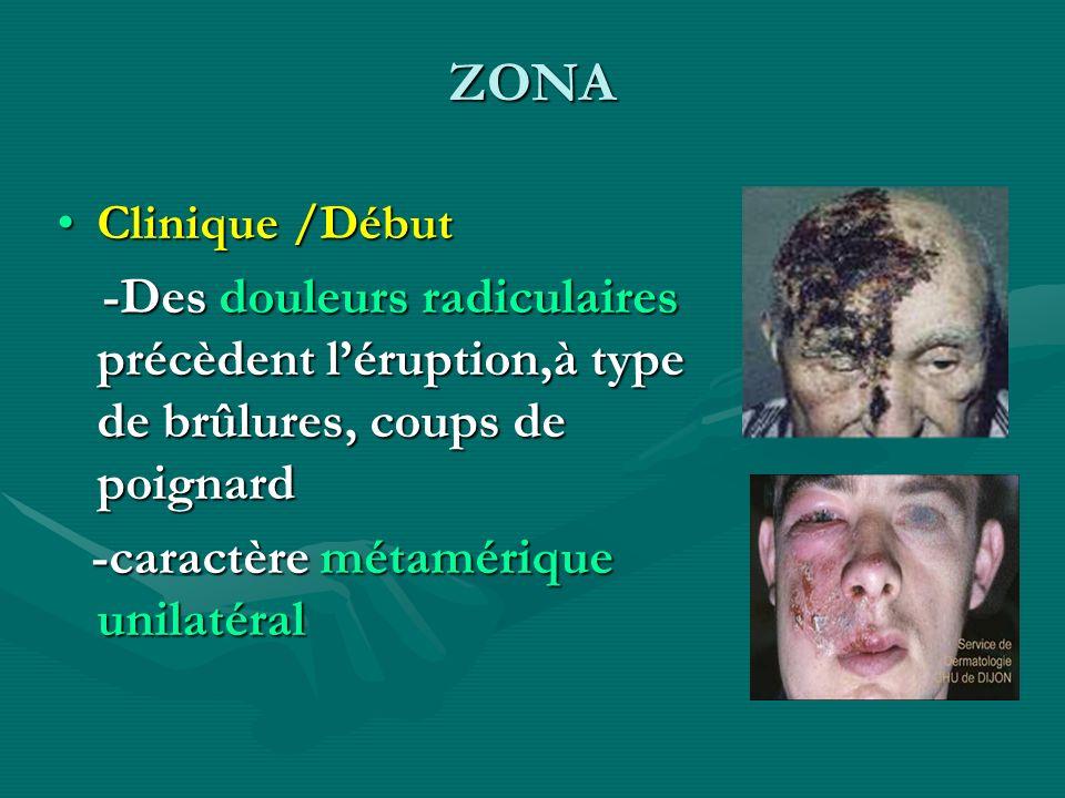 ZONA Clinique /Début. -Des douleurs radiculaires précèdent l'éruption,à type de brûlures, coups de poignard.