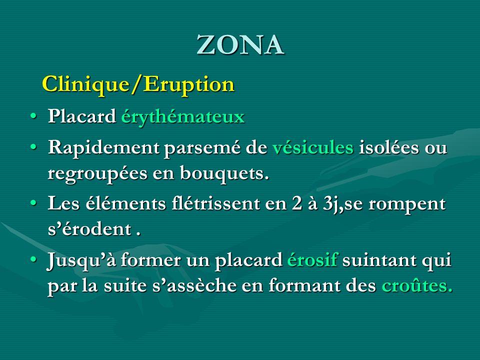 ZONA Clinique/Eruption Placard érythémateux