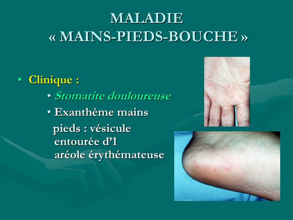 MALADIE « MAINS-PIEDS-BOUCHE »
