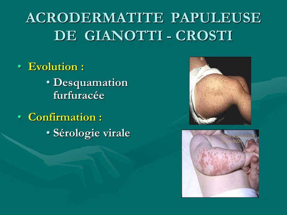 ACRODERMATITE PAPULEUSE DE GIANOTTI - CROSTI