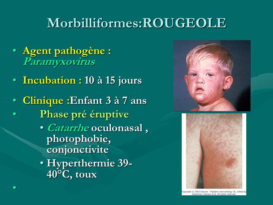 Morbilliformes:ROUGEOLE