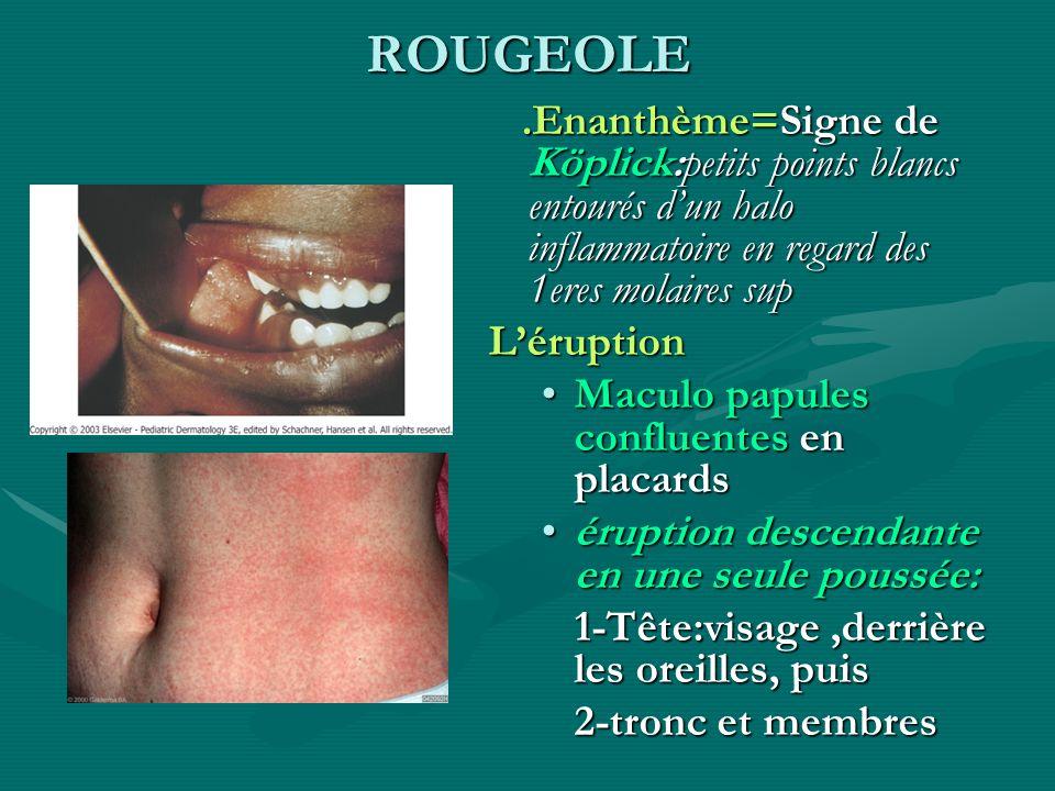 ROUGEOLE.Enanthème=Signe de Köplick:petits points blancs entourés d'un halo inflammatoire en regard des 1eres molaires sup.