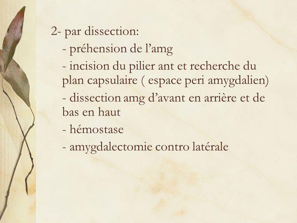2- par dissection: - préhension de l'amg. - incision du pilier ant et recherche du plan capsulaire ( espace peri amygdalien)