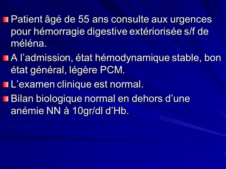 Patient âgé de 55 ans consulte aux urgences pour hémorragie digestive extériorisée s/f de méléna.