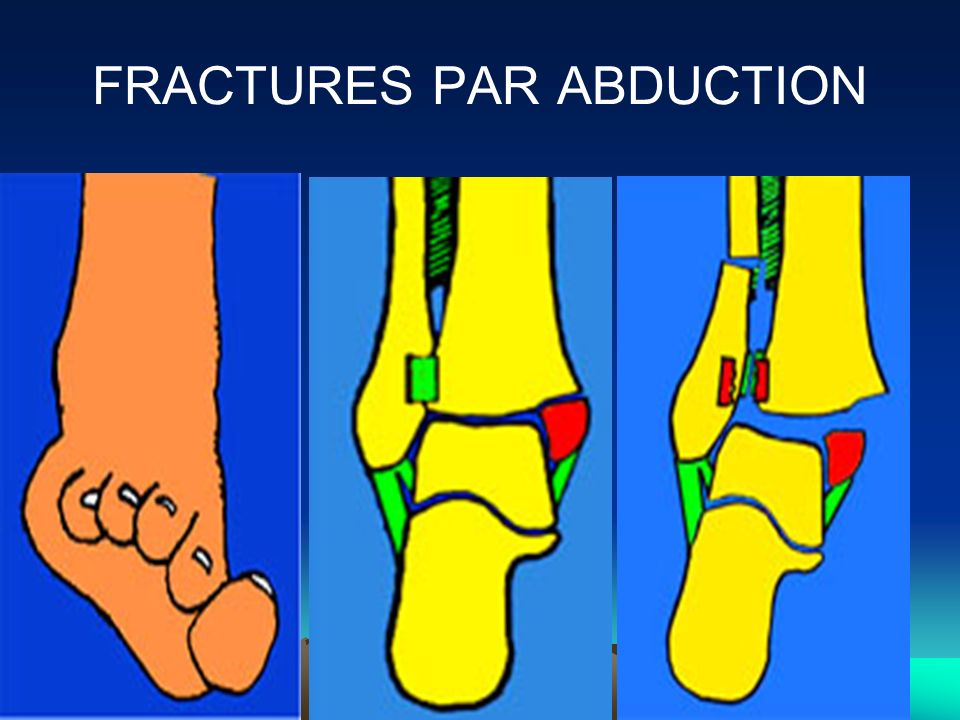 FRACTURES PAR ABDUCTION