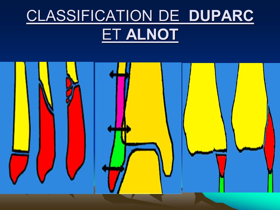 CLASSIFICATION DE DUPARC ET ALNOT