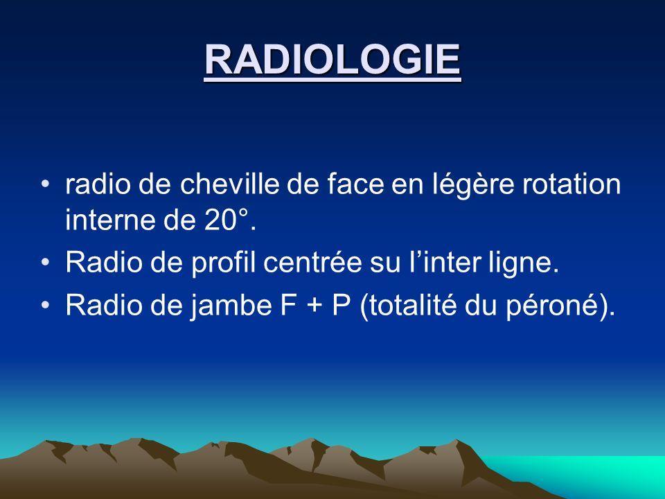 RADIOLOGIEradio de cheville de face en légère rotation interne de 20°. Radio de profil centrée su l'inter ligne.