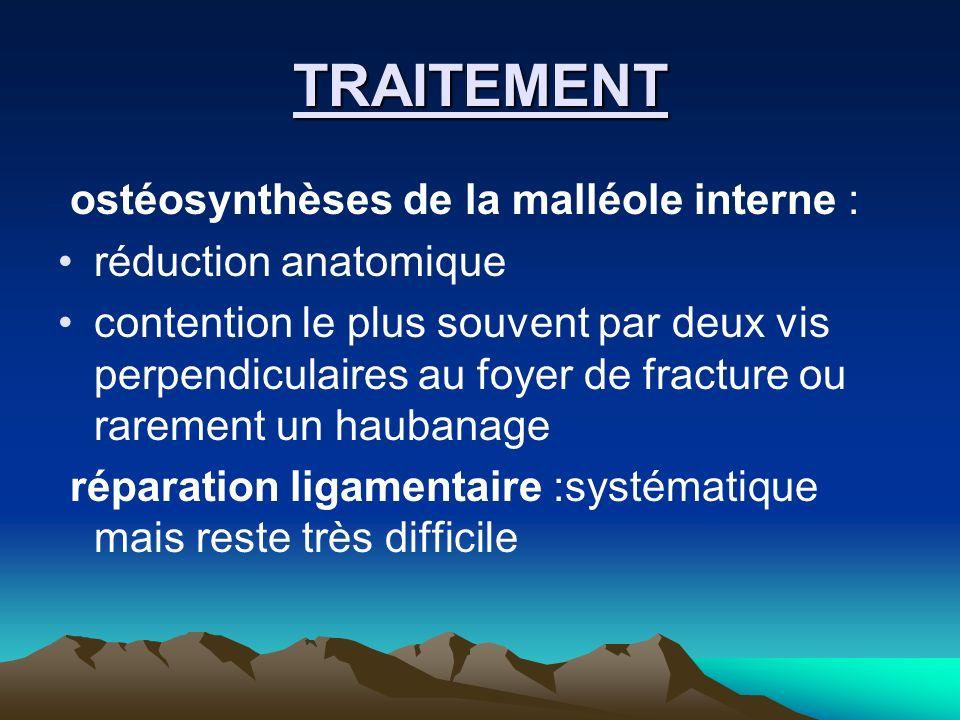 TRAITEMENT ostéosynthèses de la malléole interne :