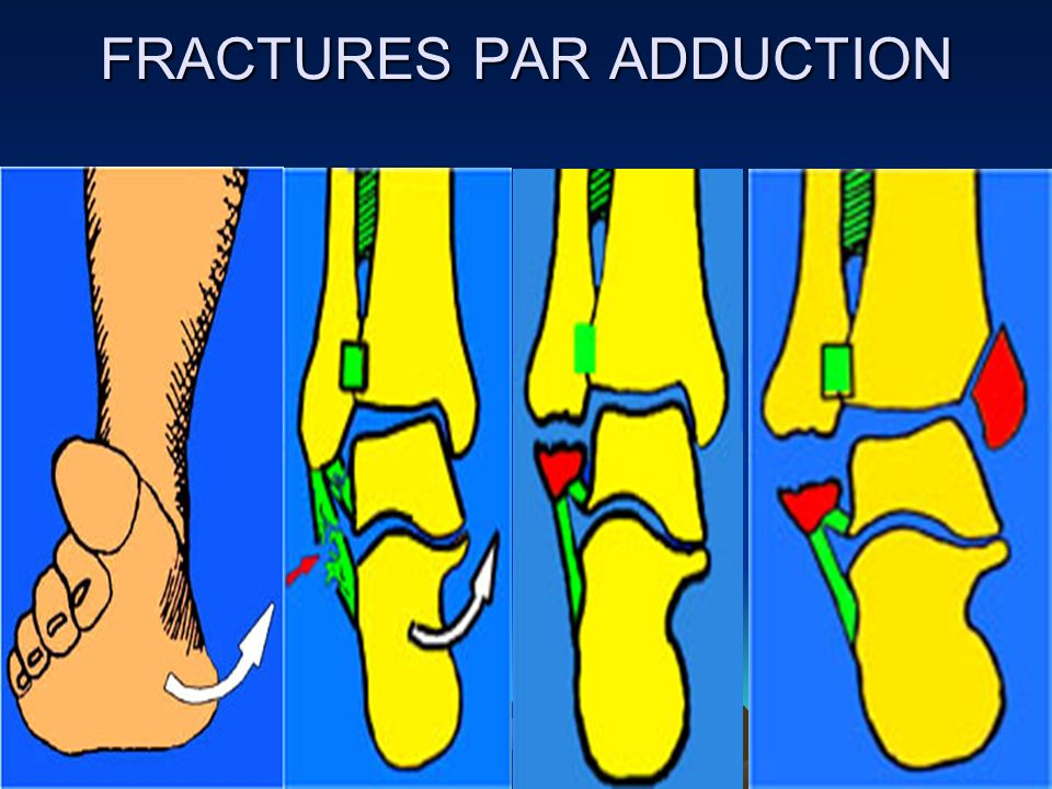 FRACTURES PAR ADDUCTION