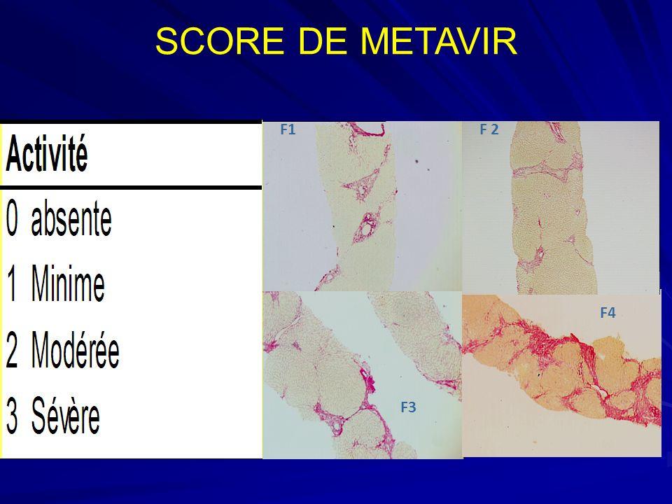 SCORE DE METAVIR F1 F 2 F4 F3