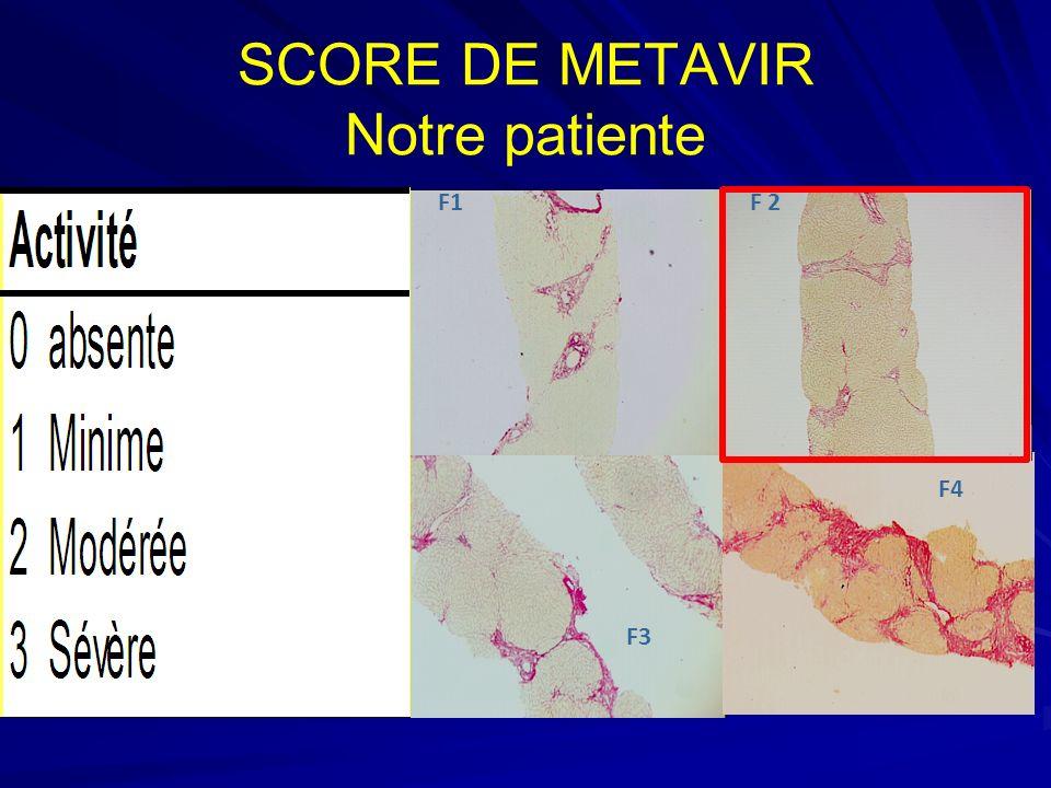 SCORE DE METAVIR Notre patiente