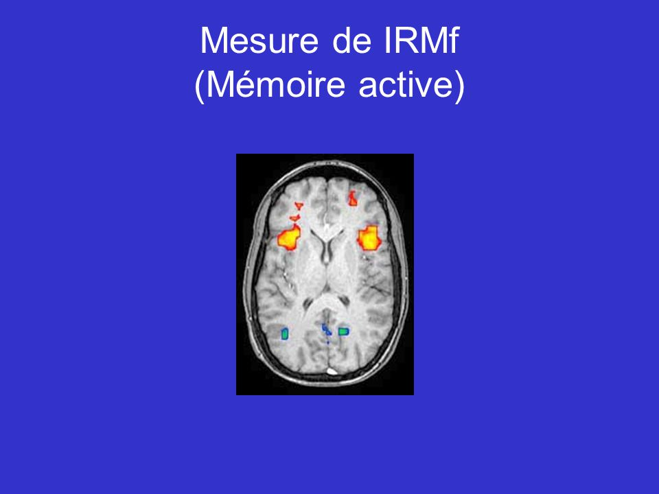 Mesure de IRMf (Mémoire active)