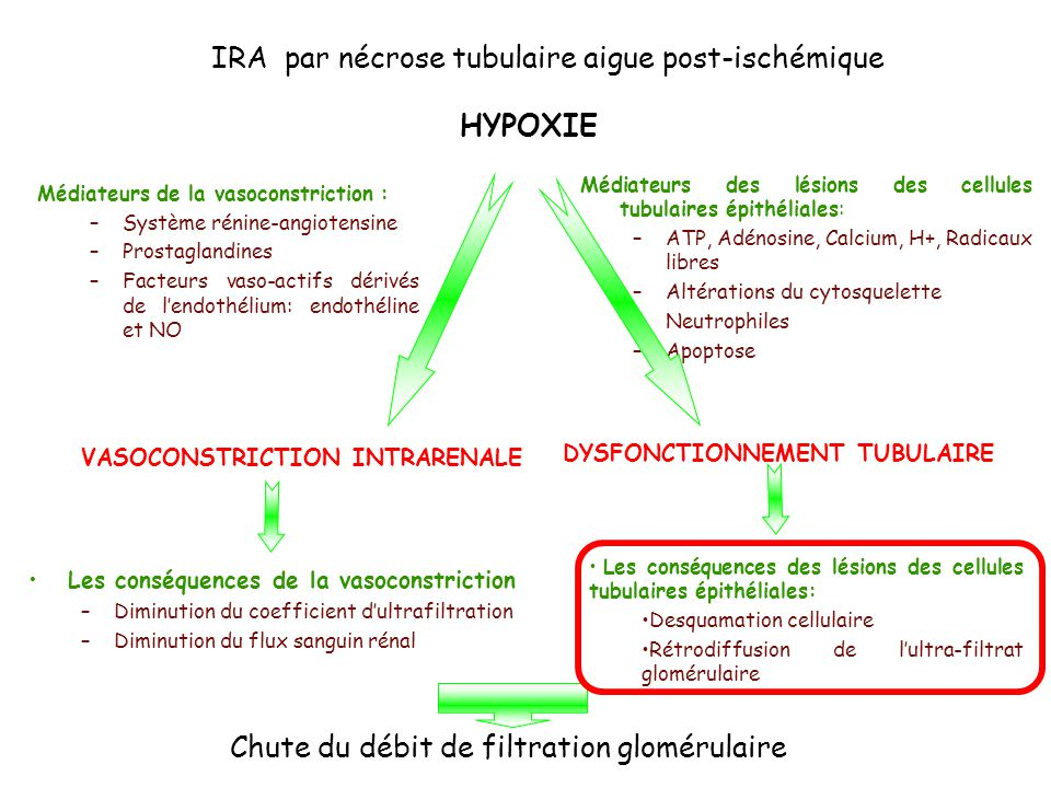 IRA par nécrose tubulaire aigue post-ischémique