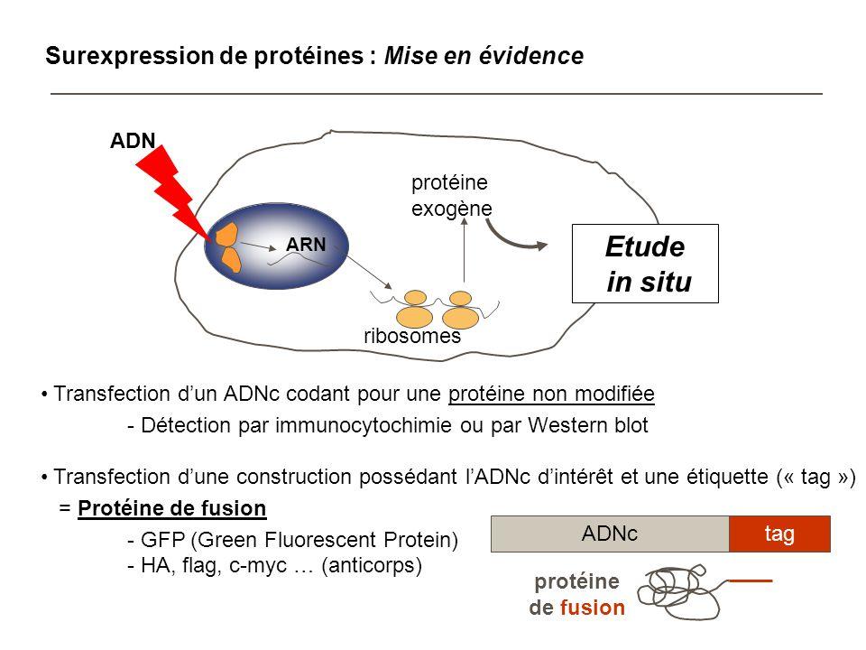 Etude in situ Surexpression de protéines : Mise en évidence ribosomes