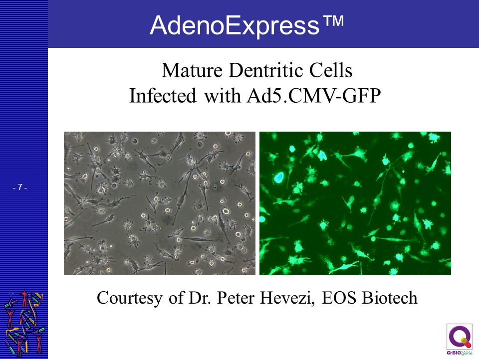 AdenoExpress™ Mature Dentritic Cells Infected with Ad5.CMV-GFP