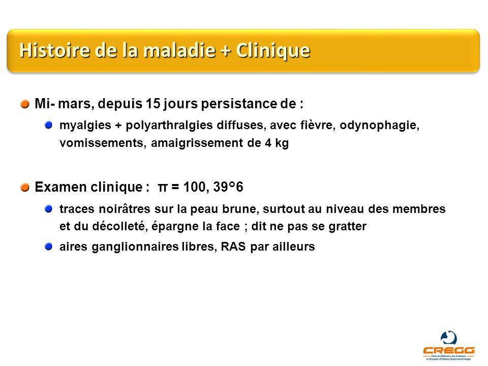 Histoire de la maladie + Clinique