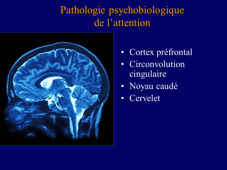 Pathologie psychobiologique de l'attention