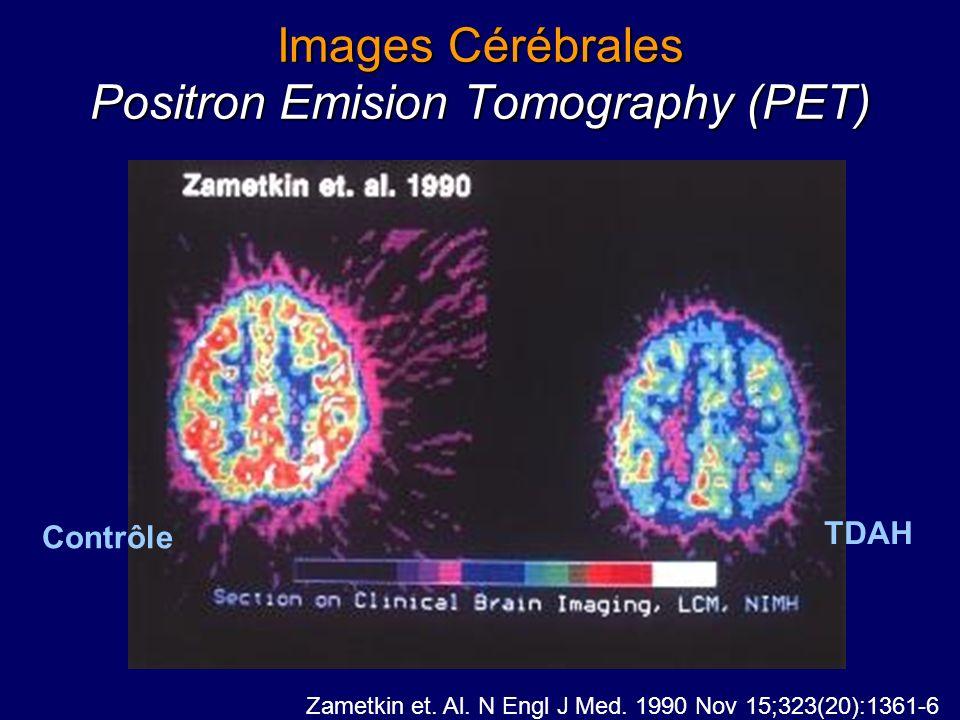 Images Cérébrales Positron Emision Tomography (PET)