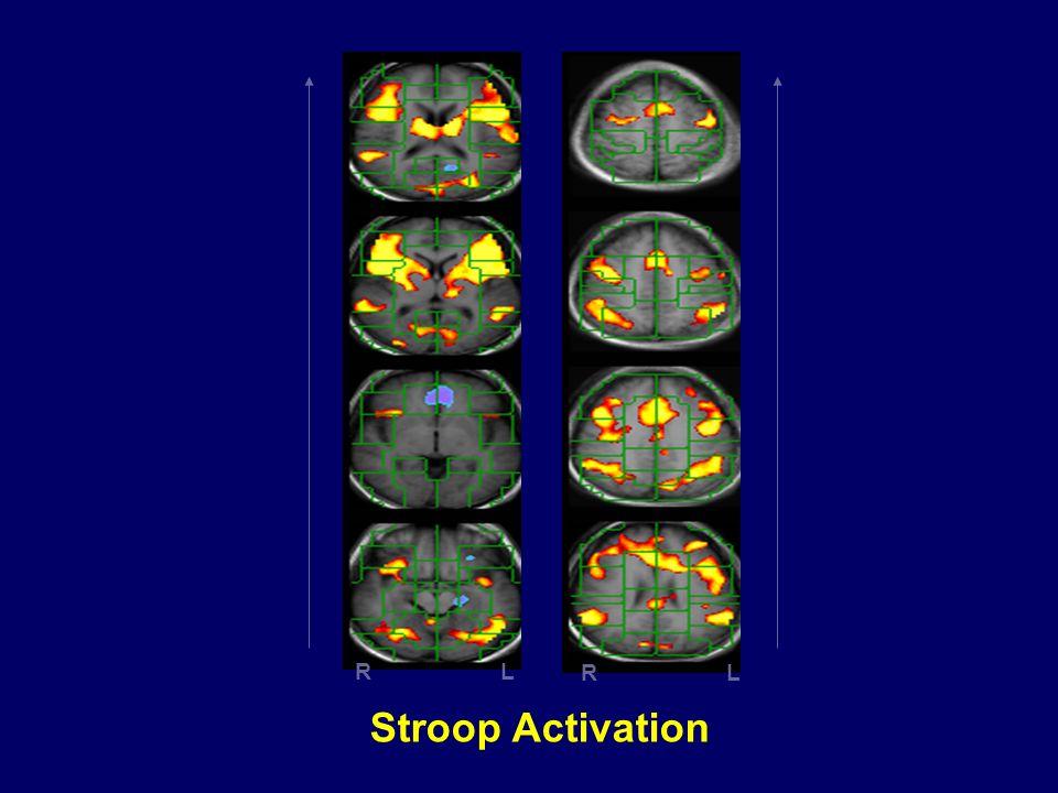 R L Stroop Activation 19