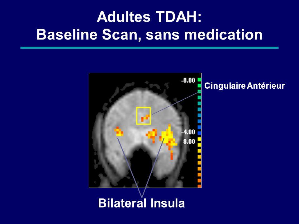 Adultes TDAH: Baseline Scan, sans medication
