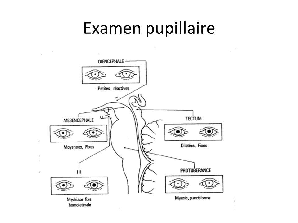 Examen pupillaire