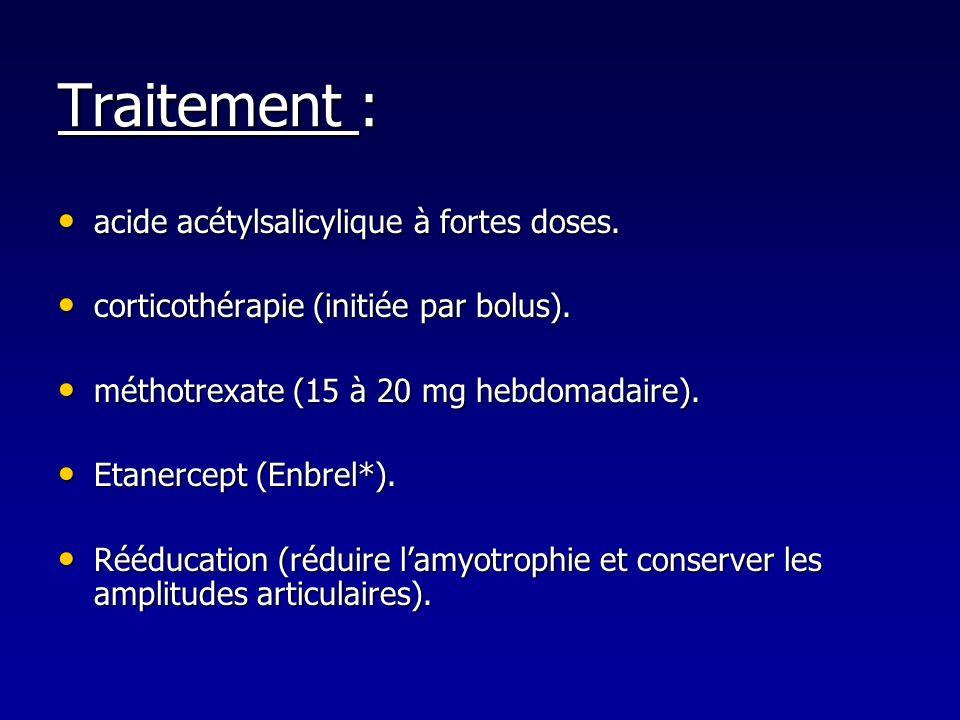 Traitement : acide acétylsalicylique à fortes doses.