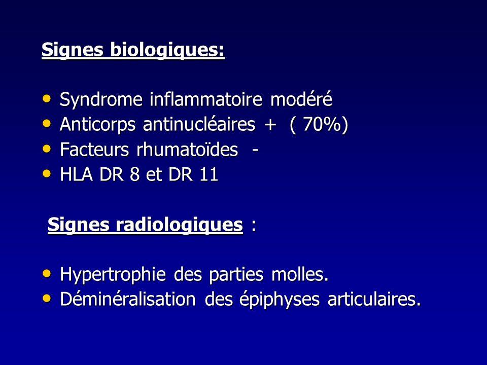 Signes biologiques:Syndrome inflammatoire modéré. Anticorps antinucléaires + ( 70%) Facteurs rhumatoïdes -