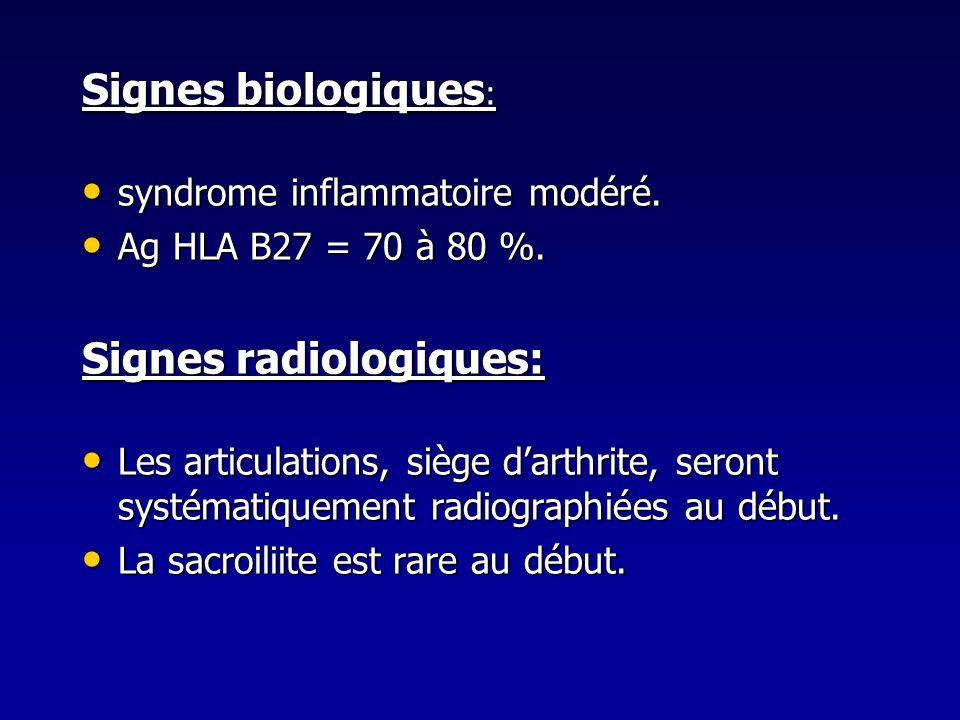Signes radiologiques: