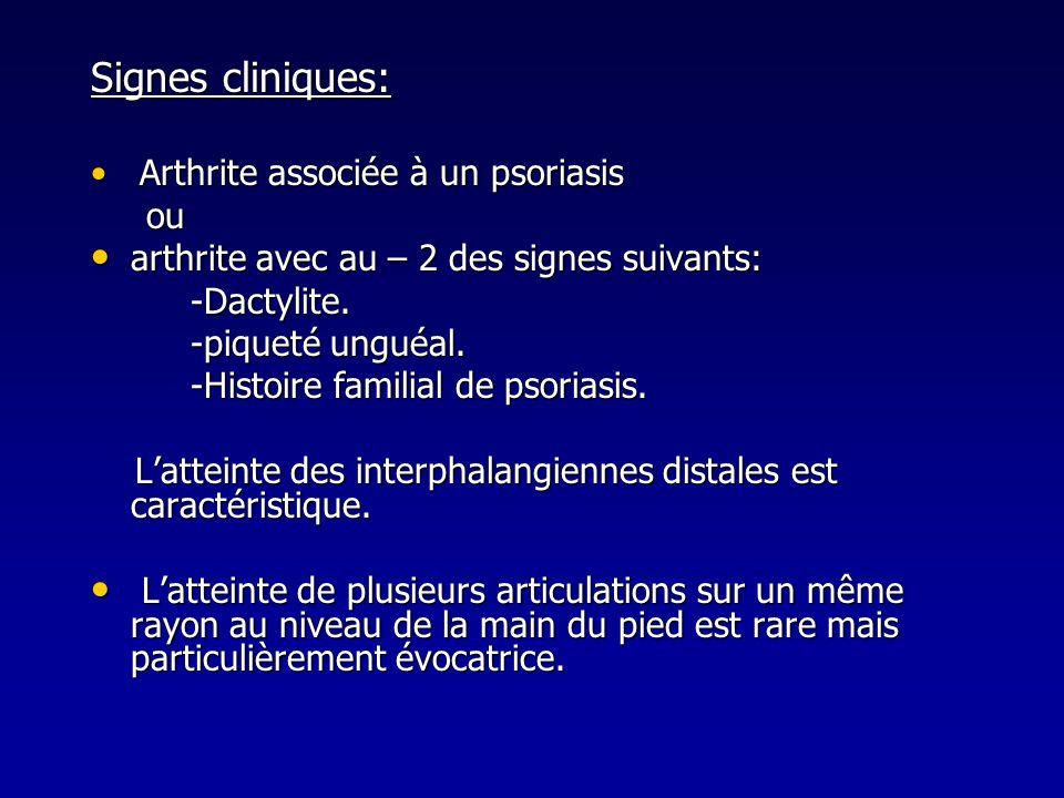 Signes cliniques: ou arthrite avec au – 2 des signes suivants: