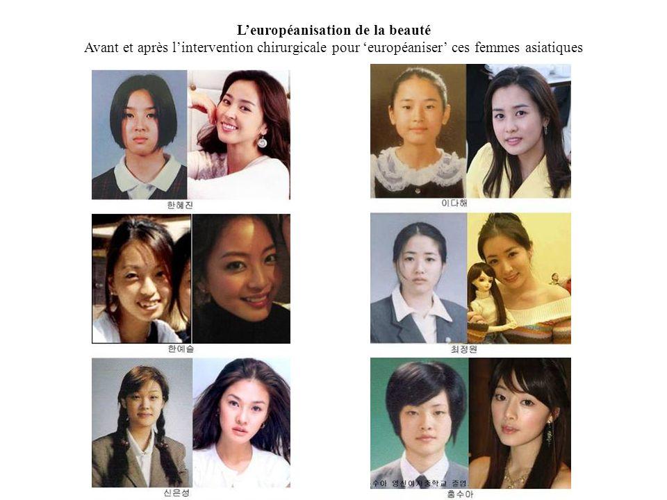 L'européanisation de la beauté Avant et après l'intervention chirurgicale pour 'européaniser' ces femmes asiatiques