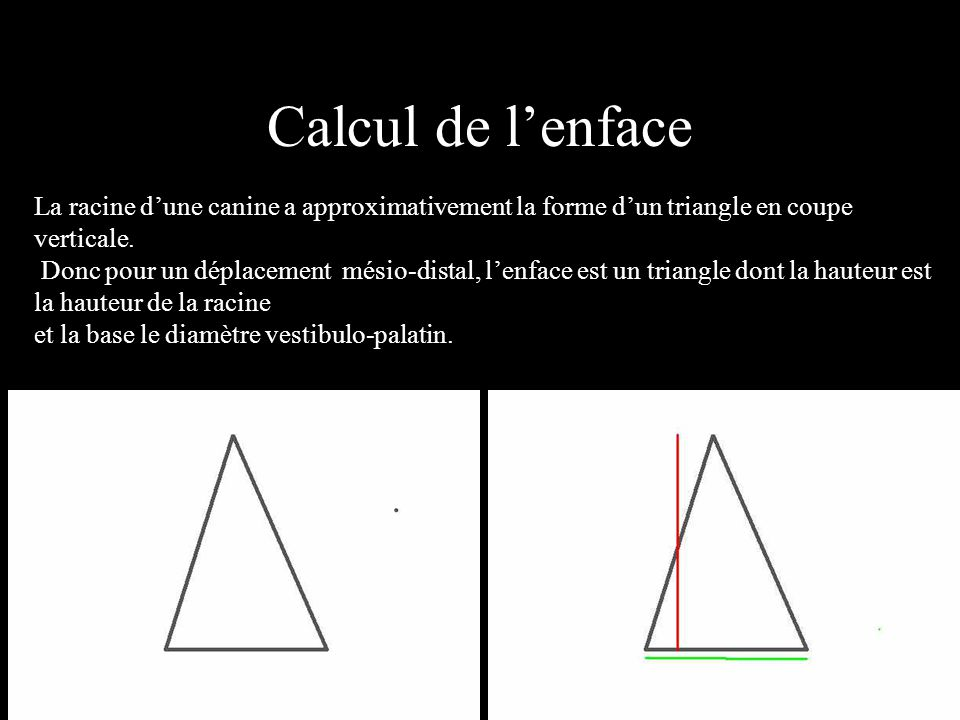 Calcul de l'enface La racine d'une canine a approximativement la forme d'un triangle en coupe verticale.