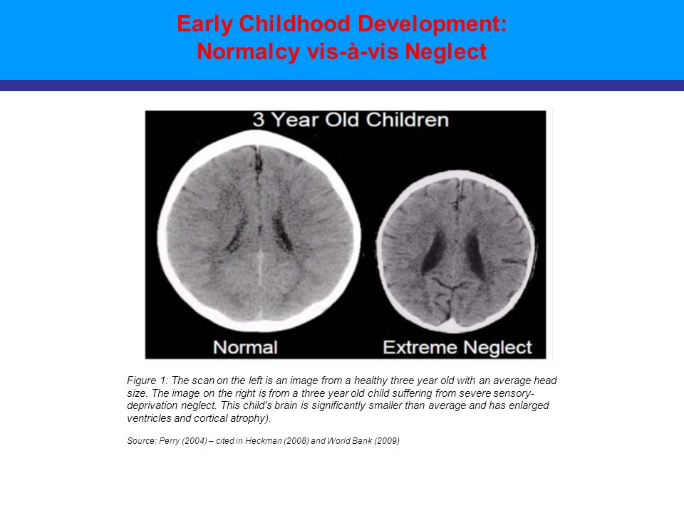 Early Childhood Development: Normalcy vis-à-vis Neglect