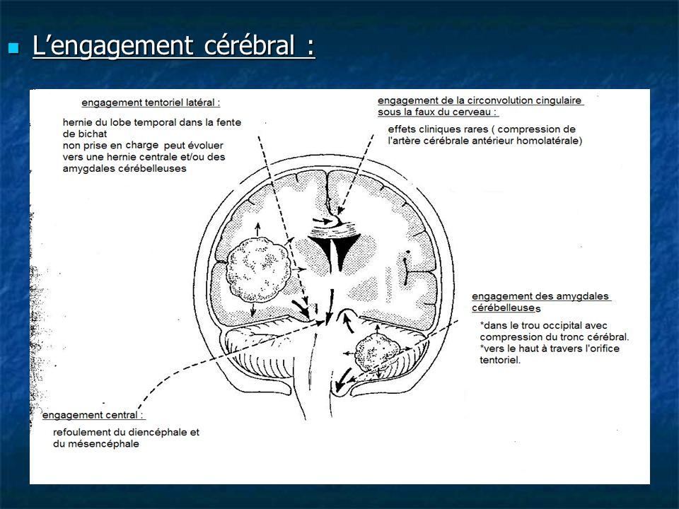 L'engagement cérébral :