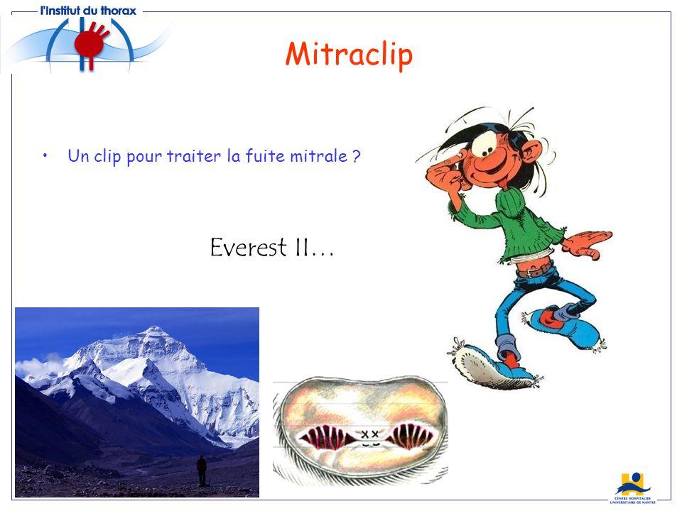 Mitraclip Un clip pour traiter la fuite mitrale Everest II…