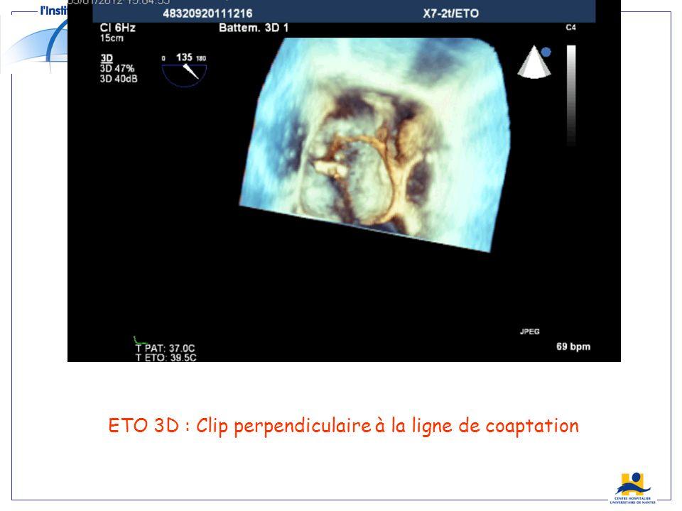 ETO 3D : Clip perpendiculaire à la ligne de coaptation