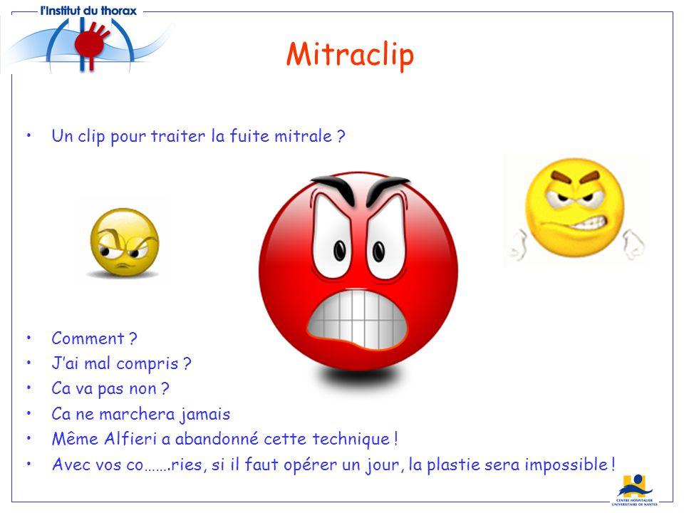 Mitraclip Un clip pour traiter la fuite mitrale Comment
