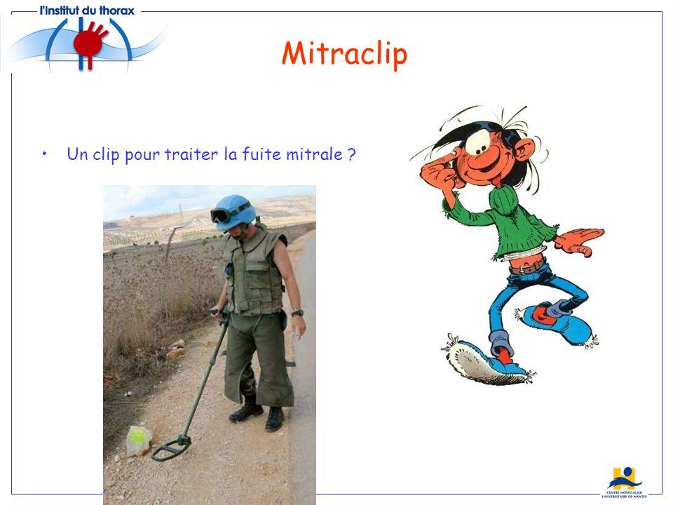 Mitraclip Un clip pour traiter la fuite mitrale Everest…