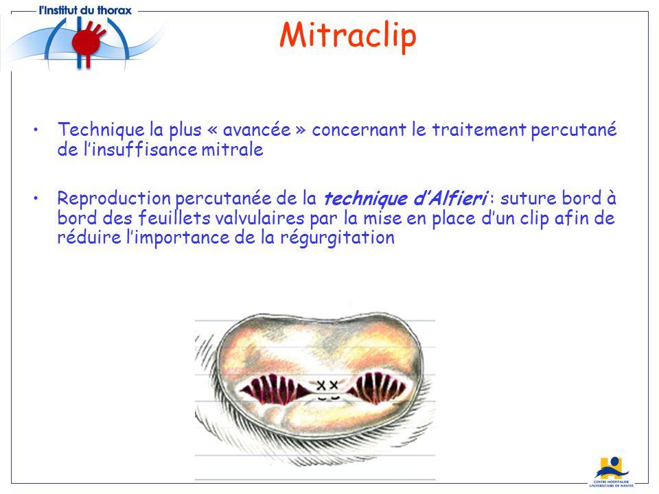 Mitraclip Technique la plus « avancée » concernant le traitement percutané de l'insuffisance mitrale.