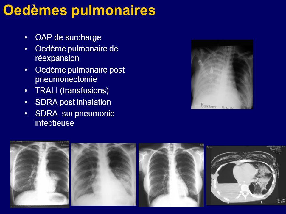Oedèmes pulmonaires OAP de surcharge Oedème pulmonaire de réexpansion