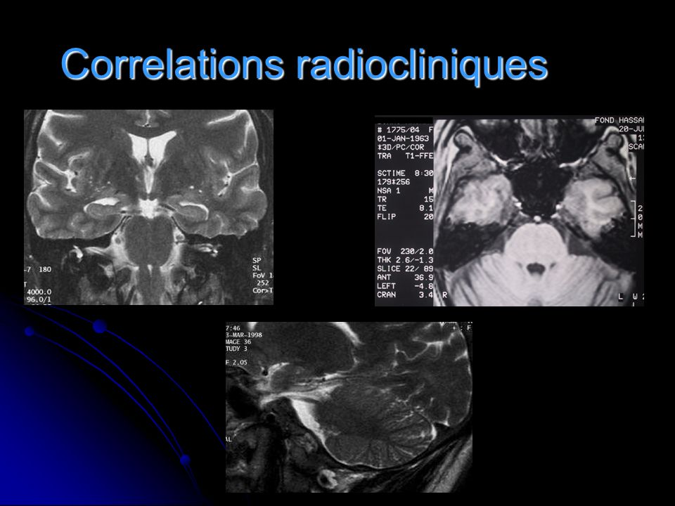 Correlations radiocliniques