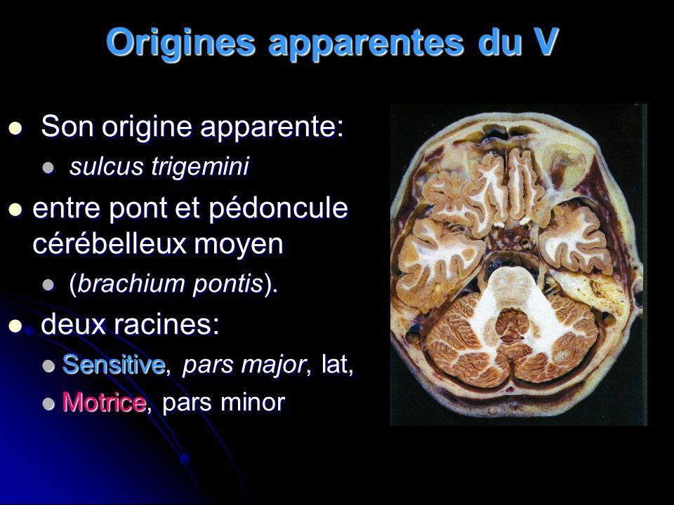 Origines apparentes du V