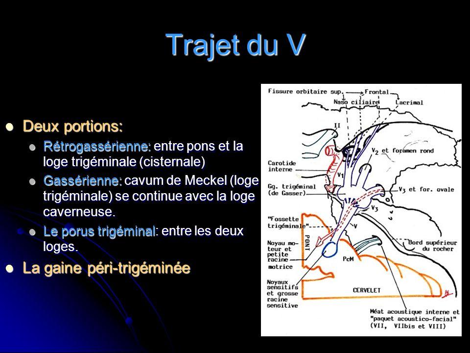 Trajet du V Deux portions: La gaine péri-trigéminée