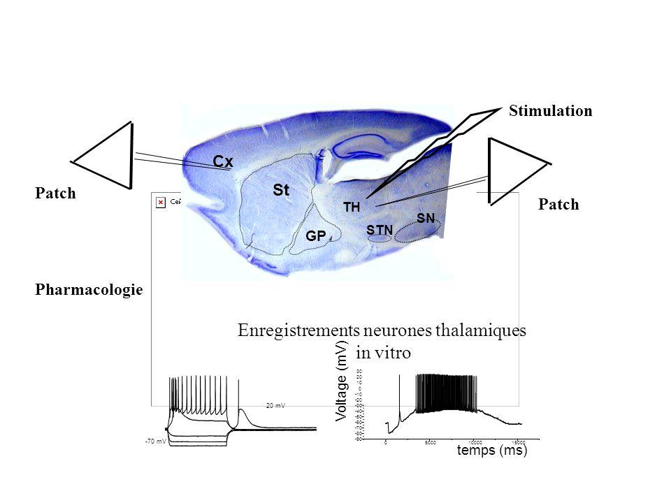 Enregistrements neurones thalamiques