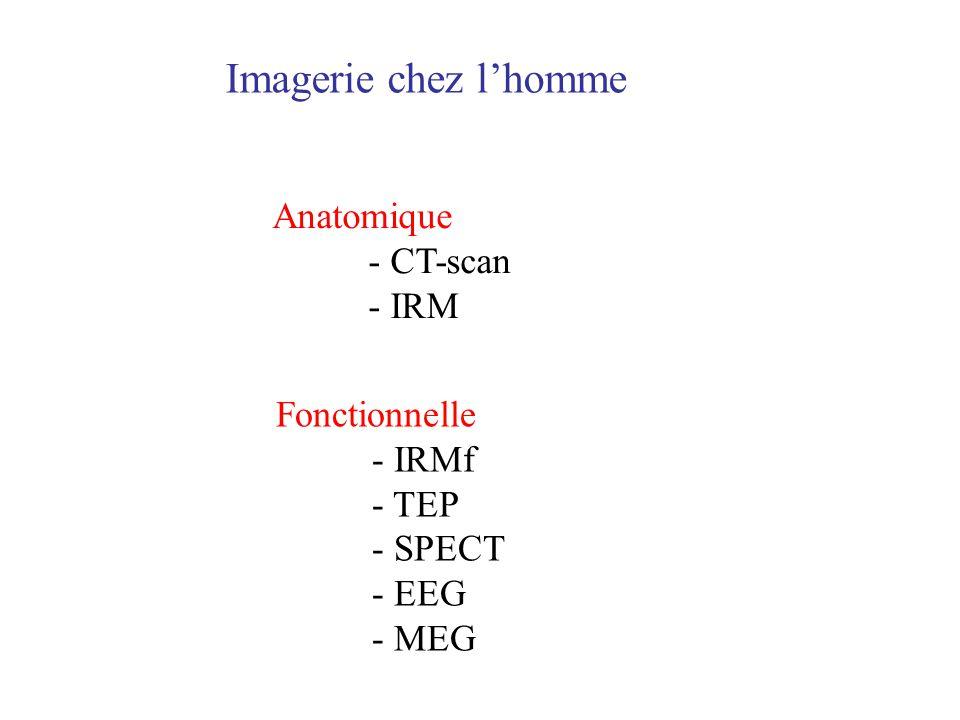 Imagerie chez l'homme Anatomique - CT-scan - IRM Fonctionnelle - IRMf
