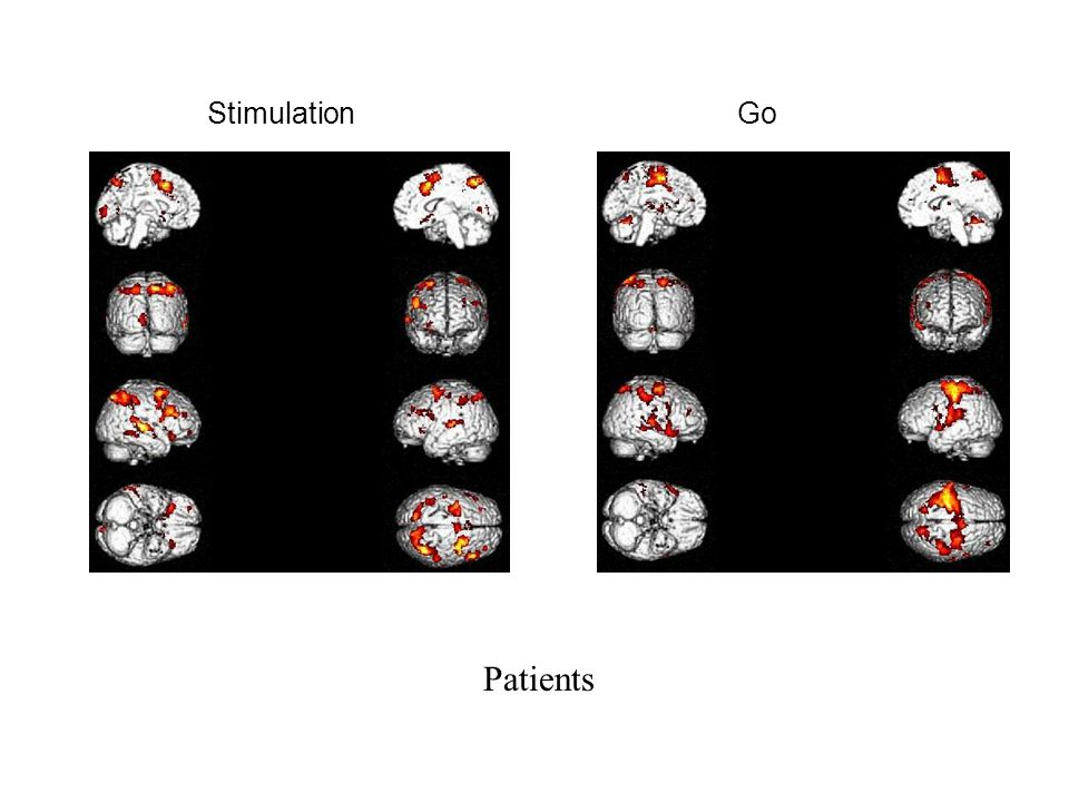 Stimulation Go Patients