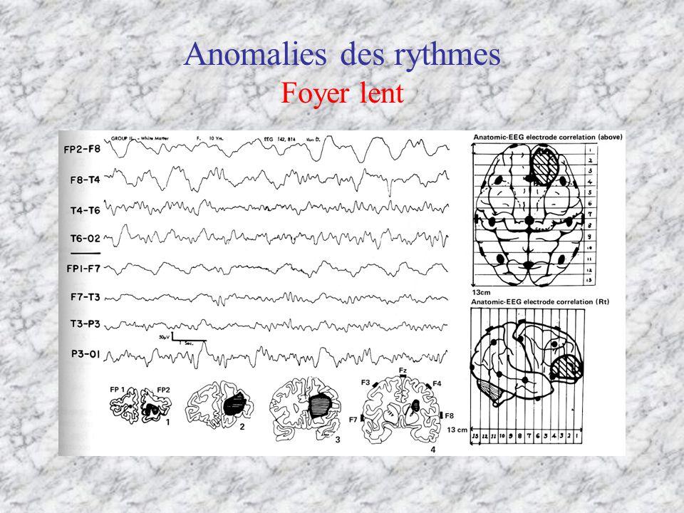 Anomalies des rythmes Foyer lent