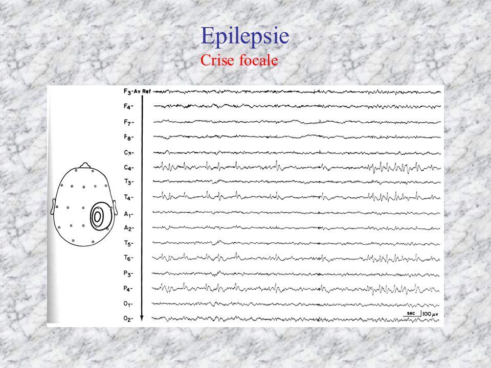 Epilepsie Crise focale