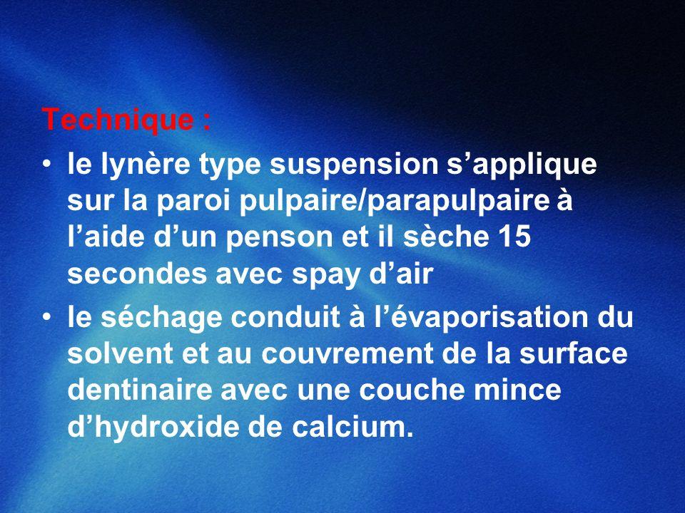 Technique : le lynère type suspension s'applique sur la paroi pulpaire/parapulpaire à l'aide d'un penson et il sèche 15 secondes avec spay d'air.