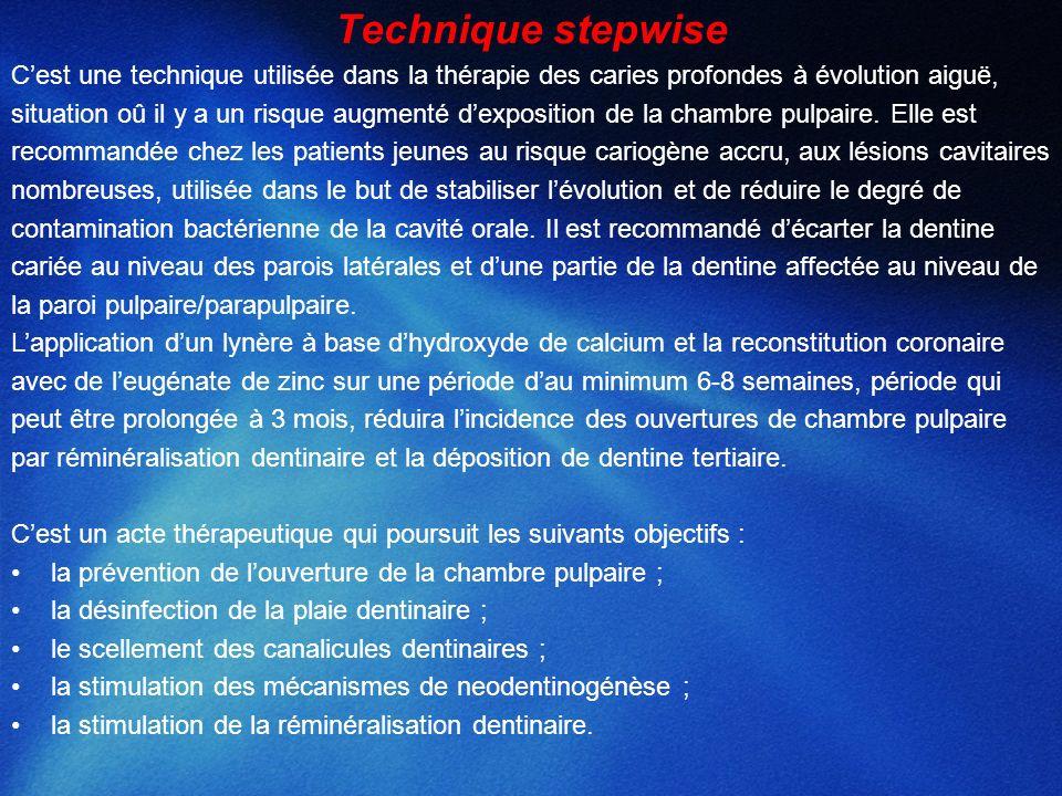 Technique stepwise C'est une technique utilisée dans la thérapie des caries profondes à évolution aiguë,